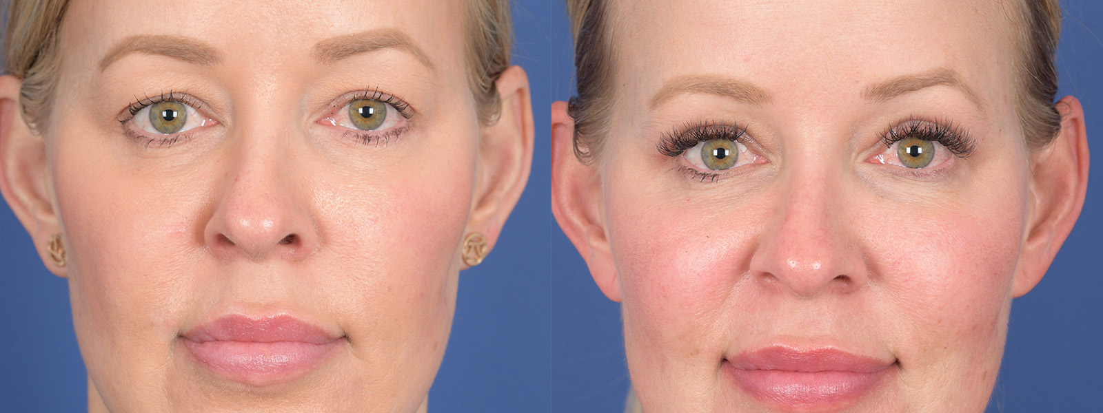 Blepharoplasty Before and After | Weber Facial Plastic Surgery