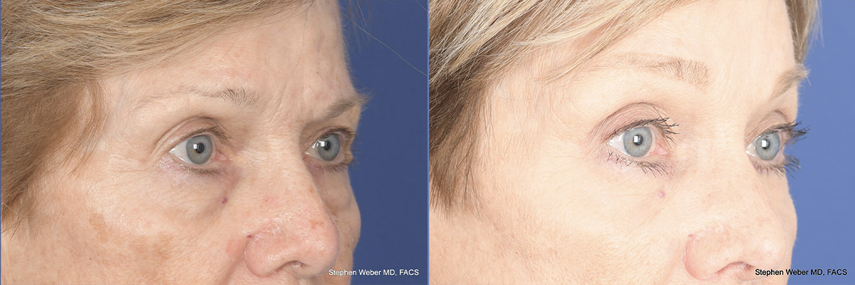 Brow Lift Before and After 02 | Weber Facial Plastic Surgery