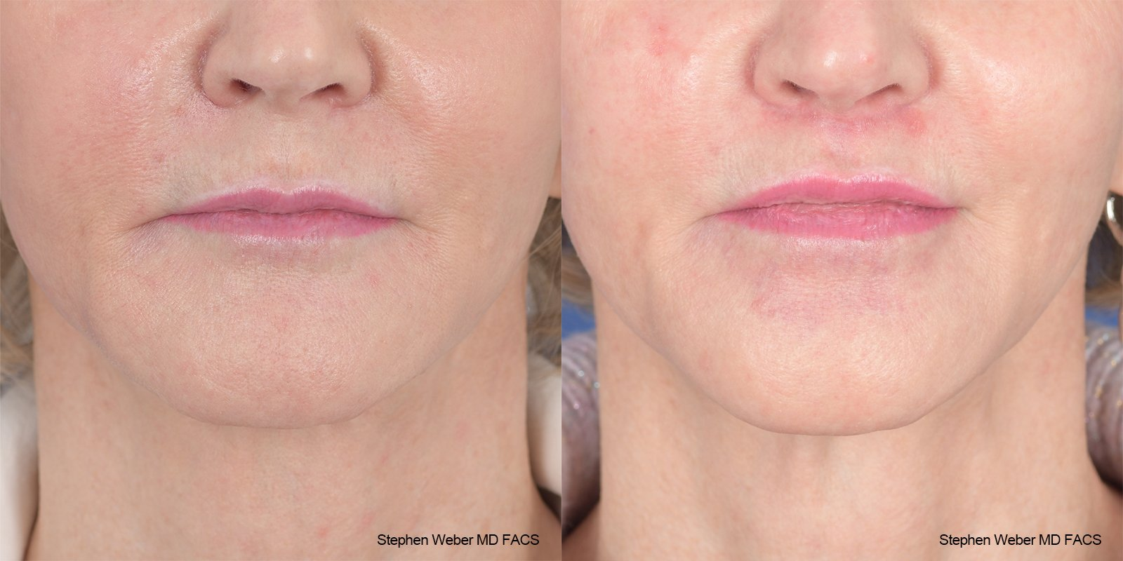 Lip Lift Before and After | Weber Facial Plastic Surgery
