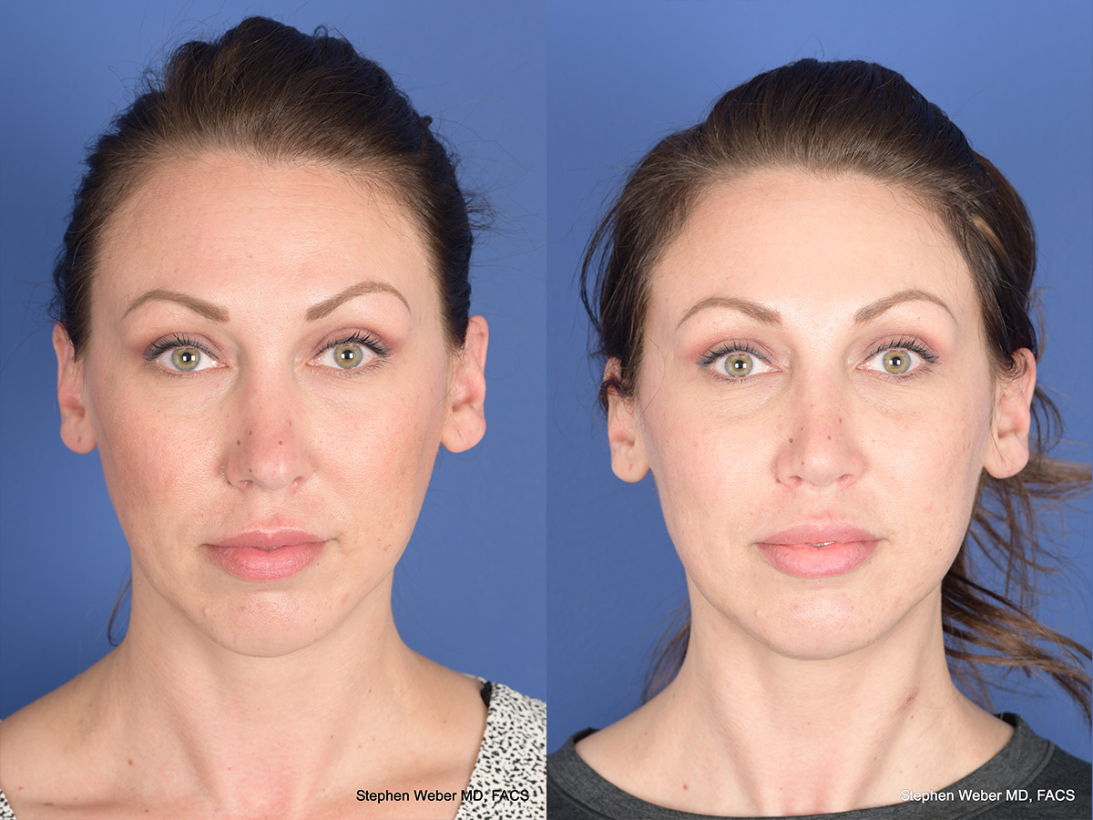 Revision Rhinoplasty Denver
