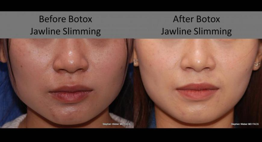 Non Surgical Jawline Shaping With Botox