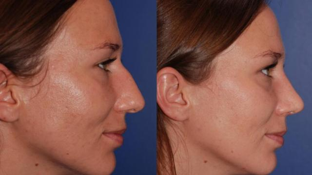 Rhinoplasty Before and After in Denver Colorado